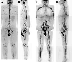 Снимок периферической нервной системы нормального организма (слева) и снимок периферической нервной системы при наличии хронического воспаления (справа)
